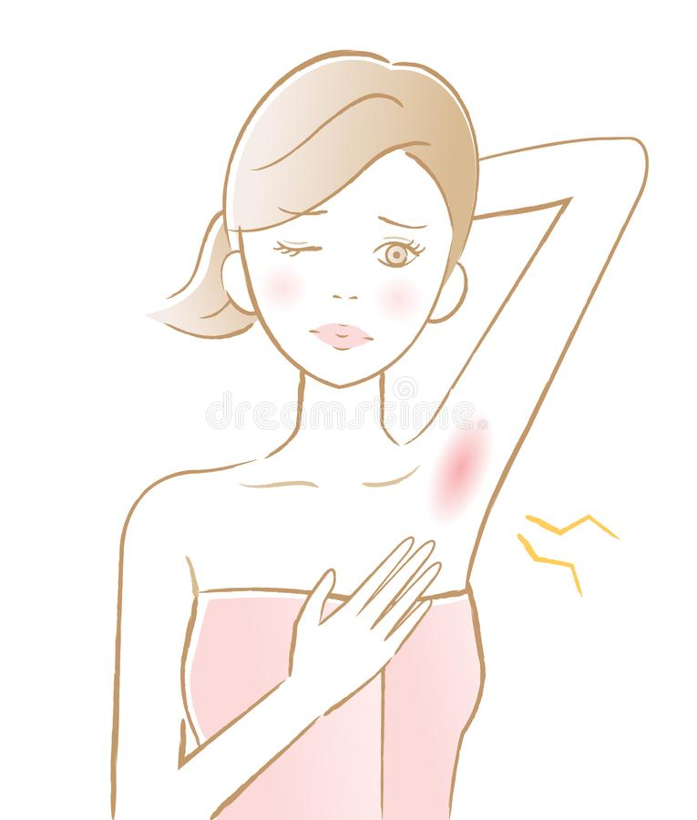Woman's armpit hair removal. underarm red rash. beauty and skin care concept royalty free illustration