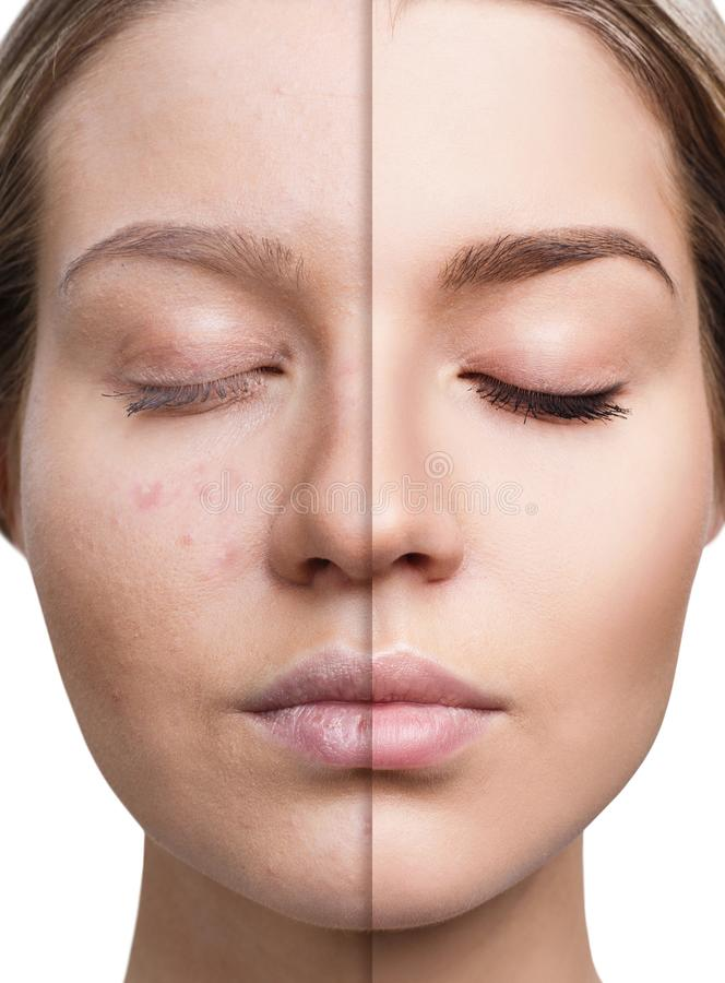 Woman with acne before and after treatment. Woman with acne before and after treatment and make-up. Skin care concepts stock images