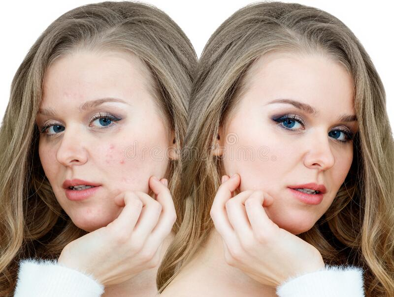 5 277 Adult Acne Treatment Photos Free Royalty Free Stock Photos From Dreamstime