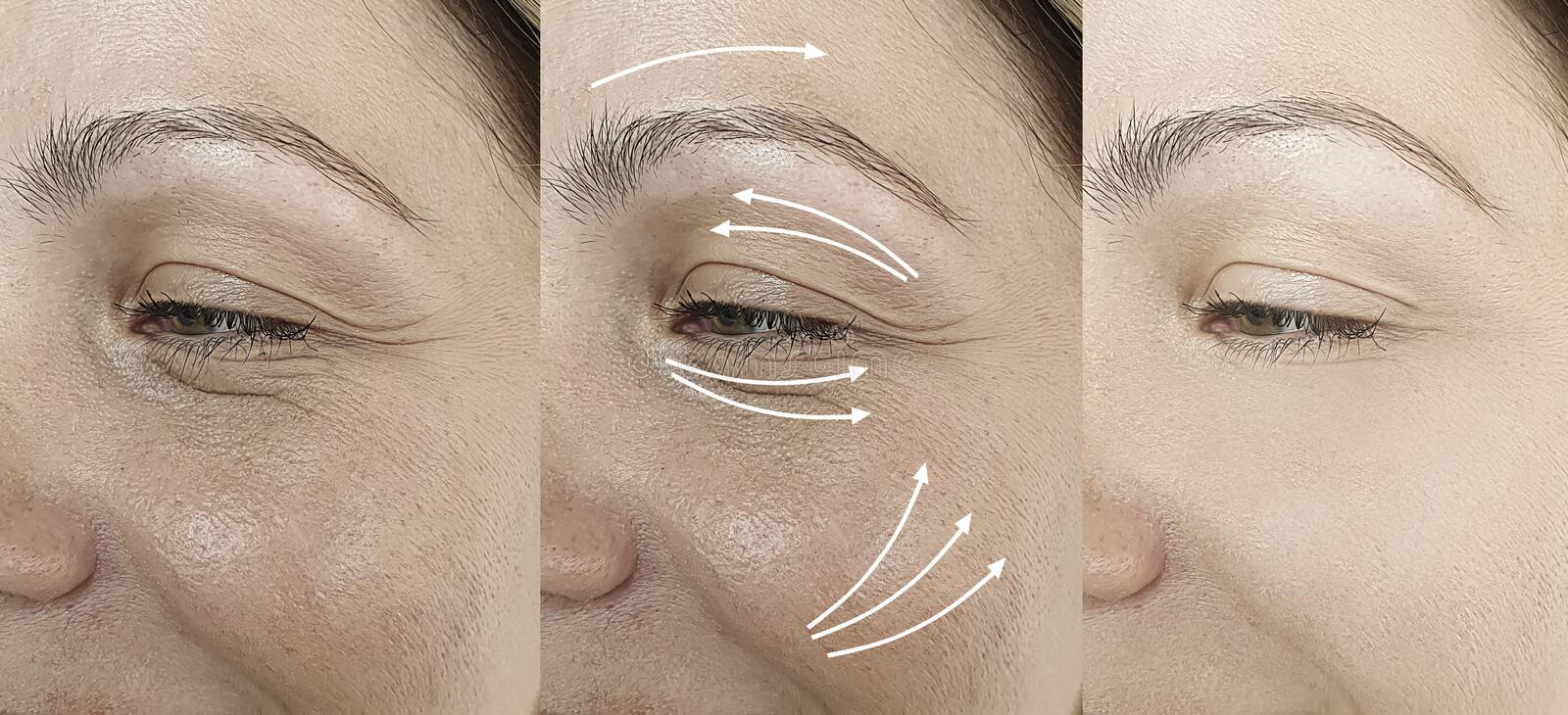 Woman adult face wrinkles effect aging after result procedure lifting regeneration orrection treatment. Woman adult  face wrinkles   before and after treatment stock photo