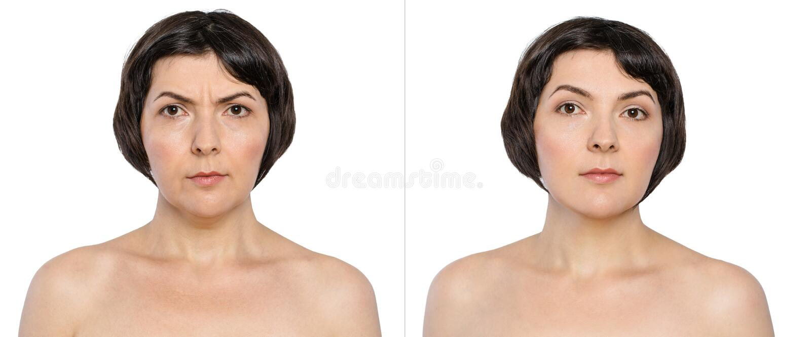Woman with and without aging singes, double chin, worry wrinkles, nasolabial folds before and after cosmetic or plastic stock images