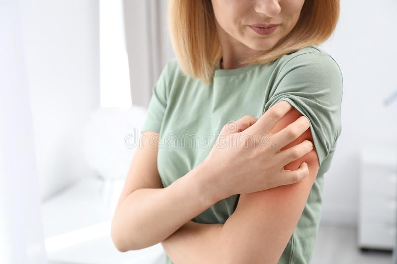 Woman with allergy symptoms scratching arm indoors, closeup. Space for text royalty free stock photo