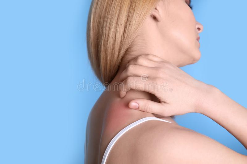 Woman with allergy symptoms scratching neck on color background, closeup. Space for text royalty free stock photo