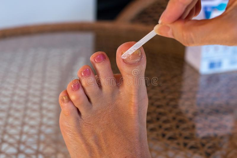 Woman Applying Anti fungus Medicine to Infected Big Toe stock images