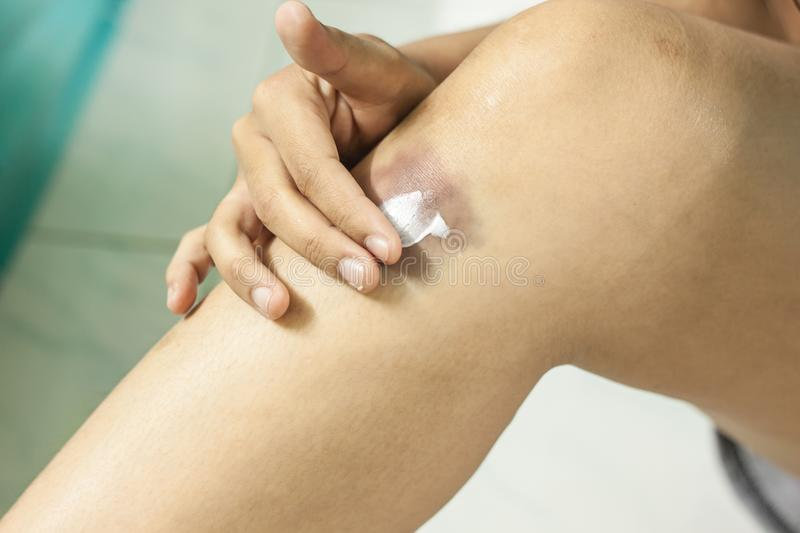 Woman Applying Cream On Bruised Knees Stock Photo - Image of casual, face:  101108200