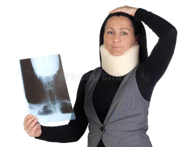 Woman with cervical collar and radiography. Isolated on white background royalty free stock image