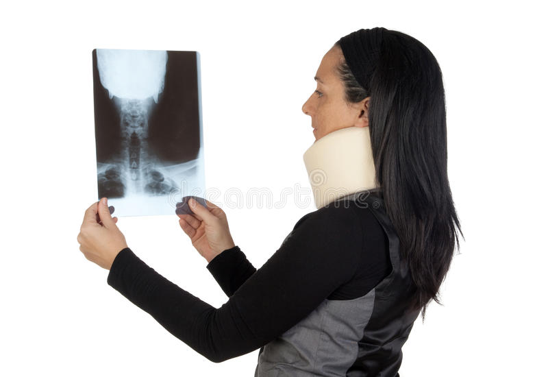 Woman with cervical collar and radiography. Isolated on white background stock photography