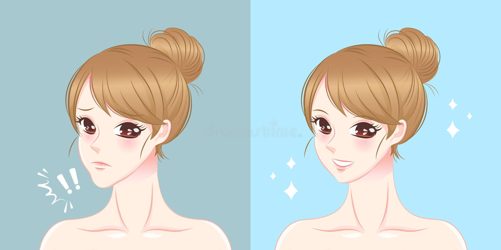Woman with chin surgery. Surgery woman with tip chin before and after on the blue background stock illustration