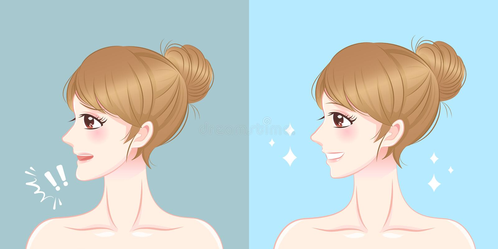 Woman with chin surgery. Surgery woman with tip chin before and after on the blue background royalty free illustration