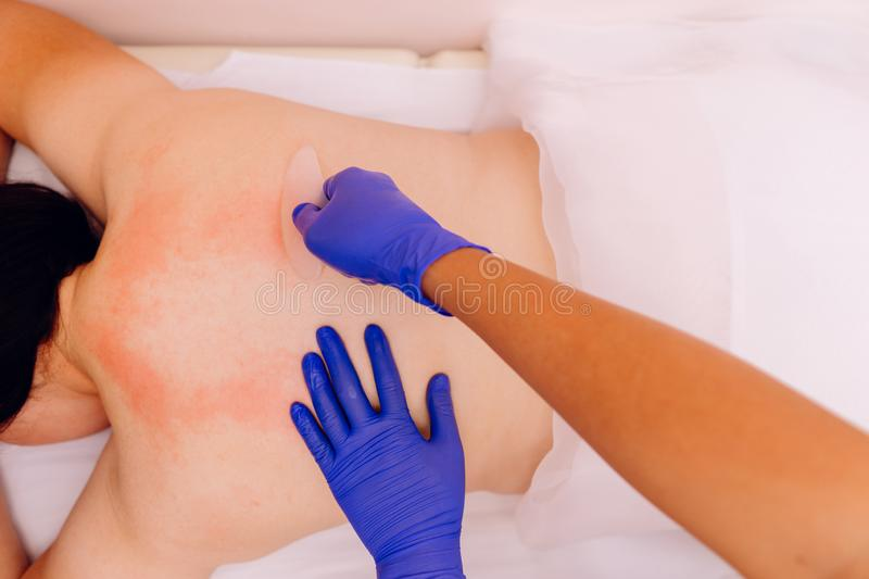 Woman during Chinese traditional massage - Gua Sha stock image