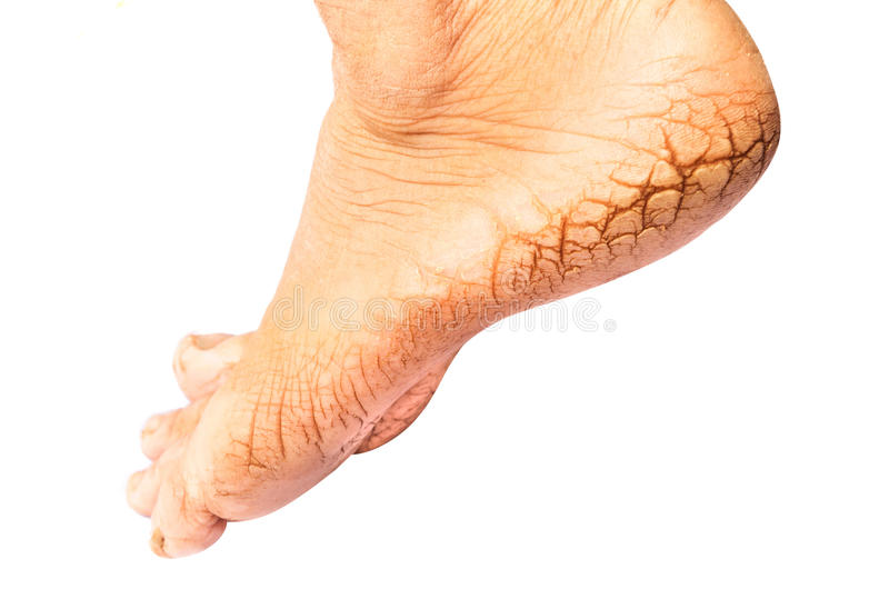 Woman cracked heels with white background, foot healthy concept royalty free stock photo