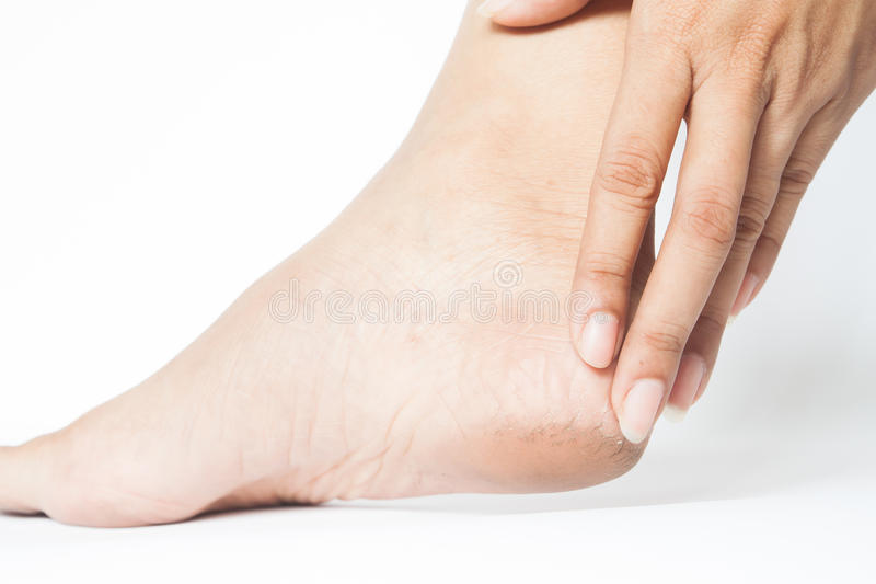 Woman cracked heels with white background, Foot healthy stock photography