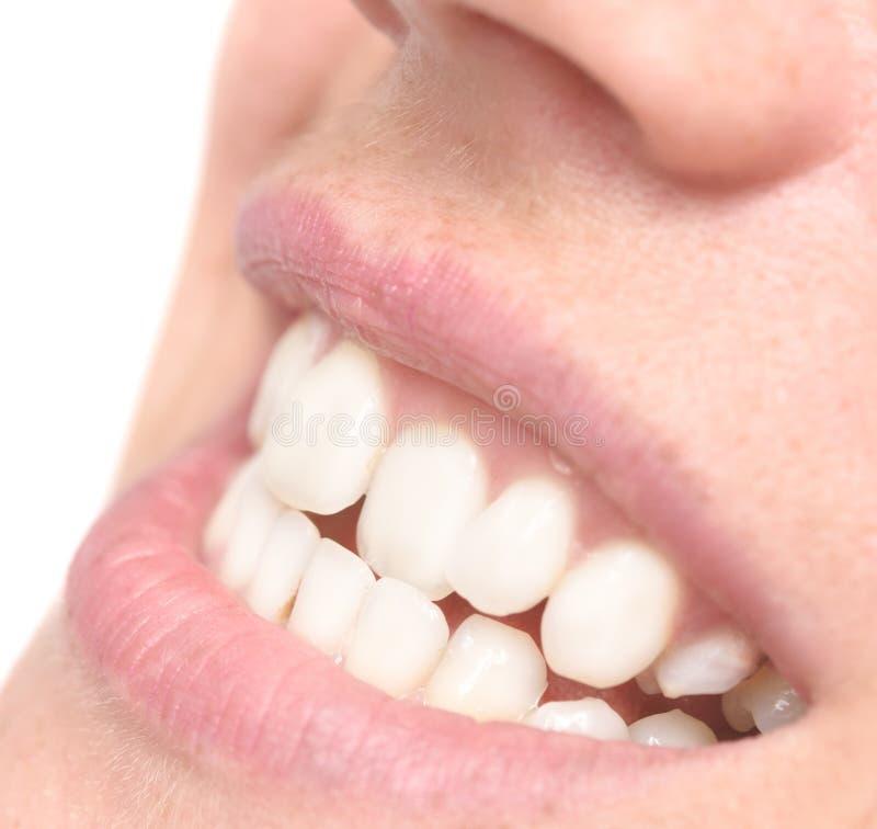 Woman crooked teeth royalty free stock photos