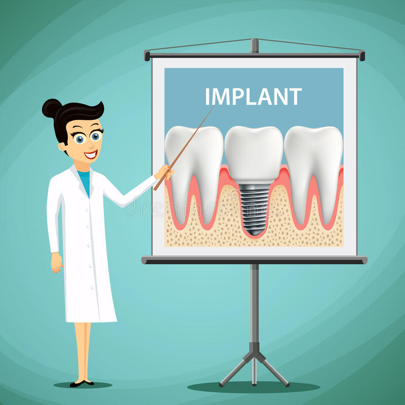 Woman dentist showing a poster with tooth implant. Dental treatment. Stock vector illustration. stock illustration