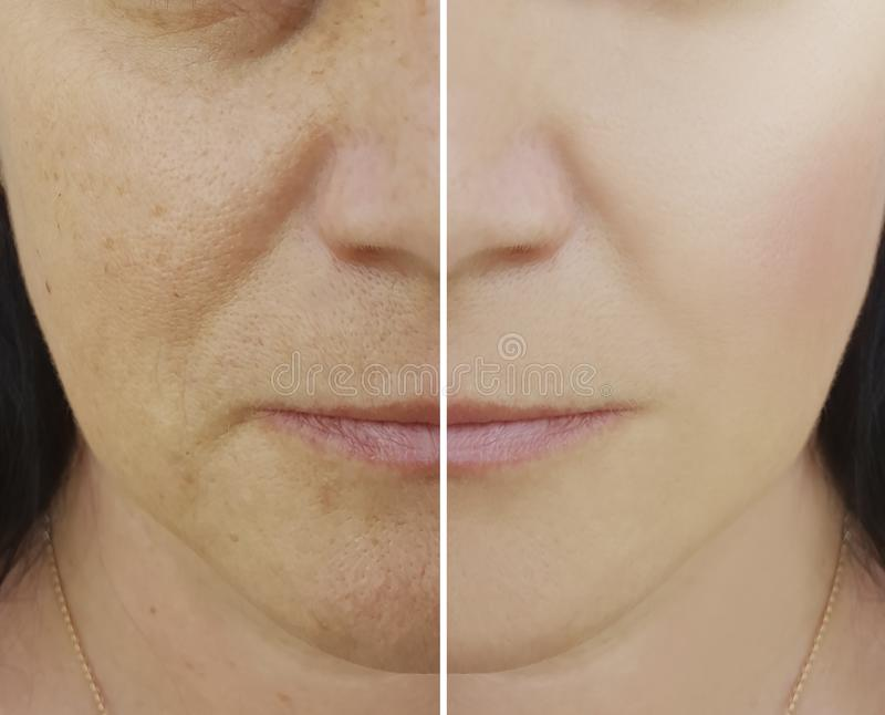 Woman difference wrinkles beautician pores results pigmentation face patient before and after lifting cosmetic procedures contrast. Woman wrinkles difference on royalty free stock photo