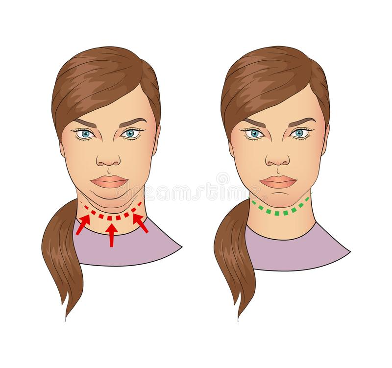 Woman with and without double chin. Cartoon illustration of woman with and without double chin isolated on white background royalty free illustration