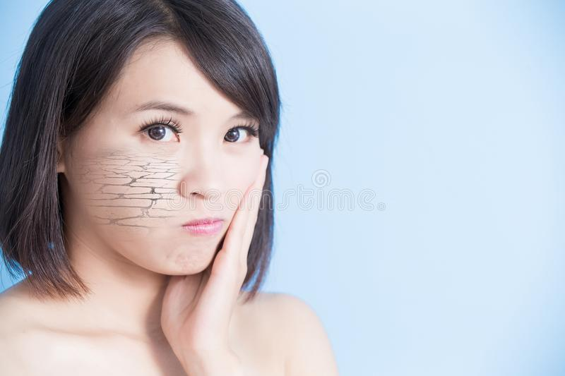 Woman with dry skin. On the blue background stock image