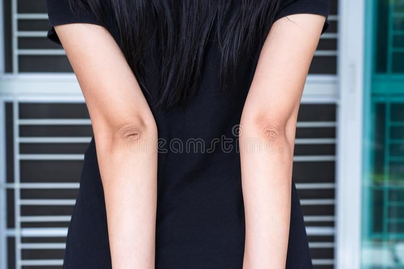 Woman with dry skin on elbow and arm,Body and health care concept royalty free stock photography