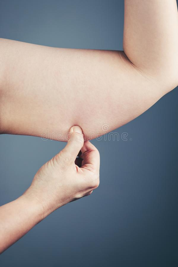 Woman with the excessive fat checking her upper arm, grey background. stock photo