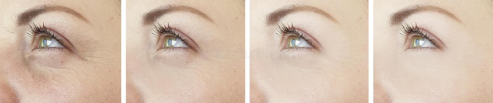 Woman eyes wrinkles collage regeneration cosmetology difference before after treatment. Woman eyes wrinkles before and after treatment collage difference stock photography