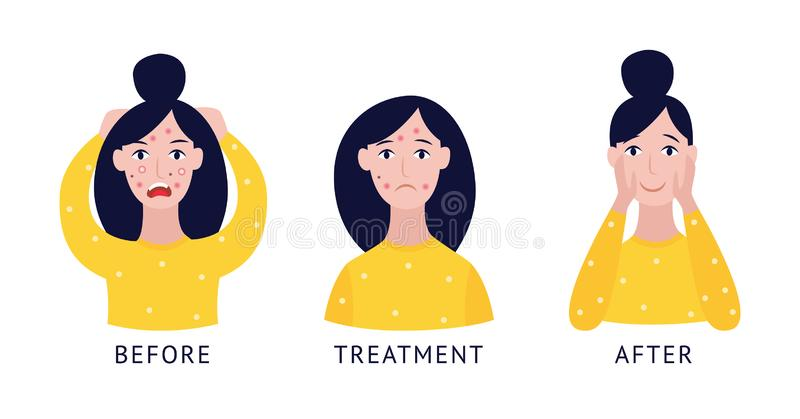 Woman face before and after acne treatment care flat vector illustration isolated. Woman face before, in the time of and after acne treatment procedures flat vector illustration