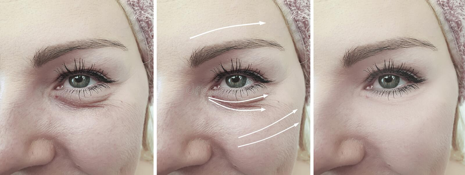 Woman face crease arrow difference effect eye removal before and after treatment. Woman face crease before and after removal    eye effect cosmetology arrow royalty free stock photos