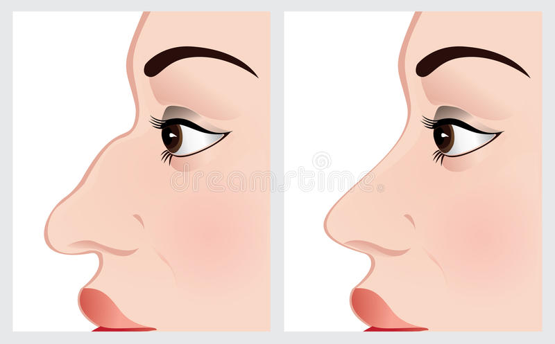 Woman face before and after nose surgery. Vector illustration of woman face before and after nose surgery royalty free illustration