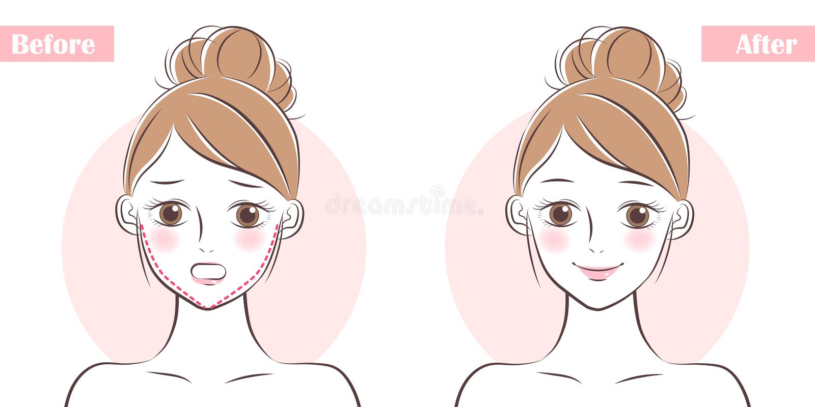 Face about plastic surgery. Woman face before and after plastic surgery royalty free illustration