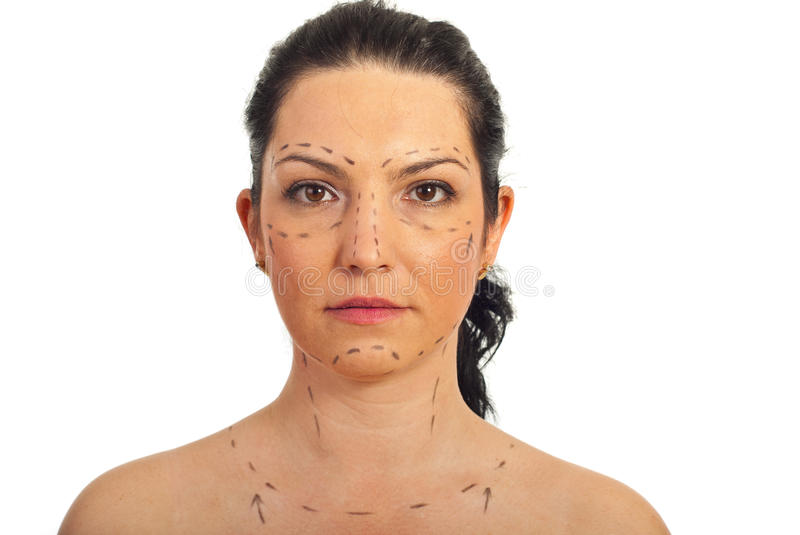 Woman face prepared for plastic surgery. Portrait of mid adult woman face prepared for plastic surgery isolated on white background royalty free stock image