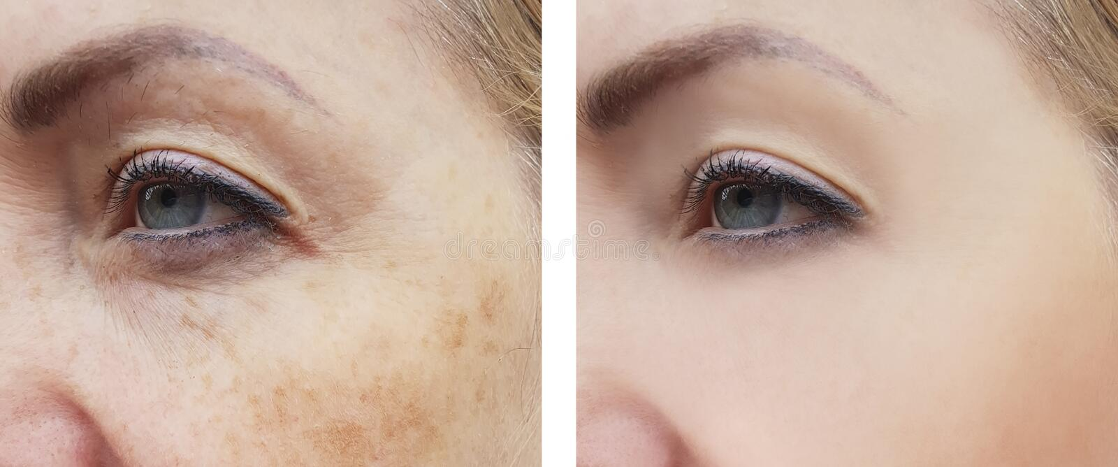 Woman face wrinkles pigmentation difference correction treatment health before and after procedures. Woman face wrinkles pigmentation before and after procedures stock photos