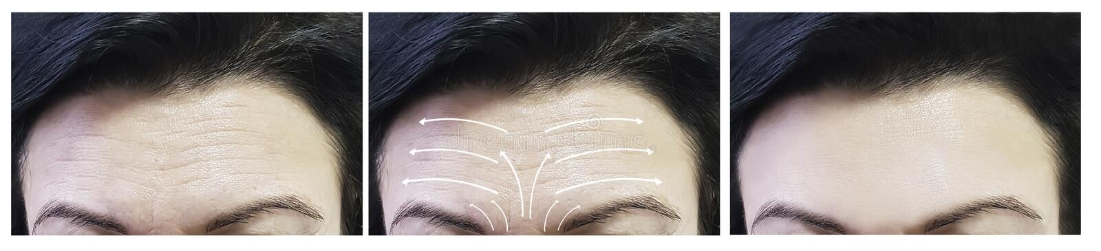 Woman face wrinkles before and after procedures correction , arrow skin tightening stock photography