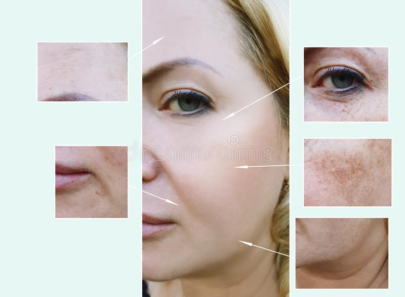 Woman face wrinkles before and after aging procedures, pigmentation dermatology stock images