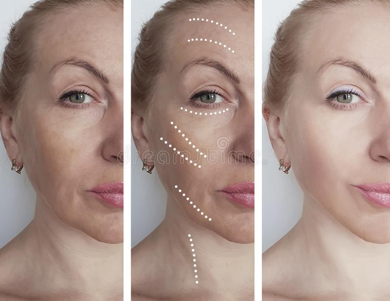 Woman face wrinkles before after regeneration  therapy hydrating treatment biorevitalization correction procedures, tension royalty free stock photo