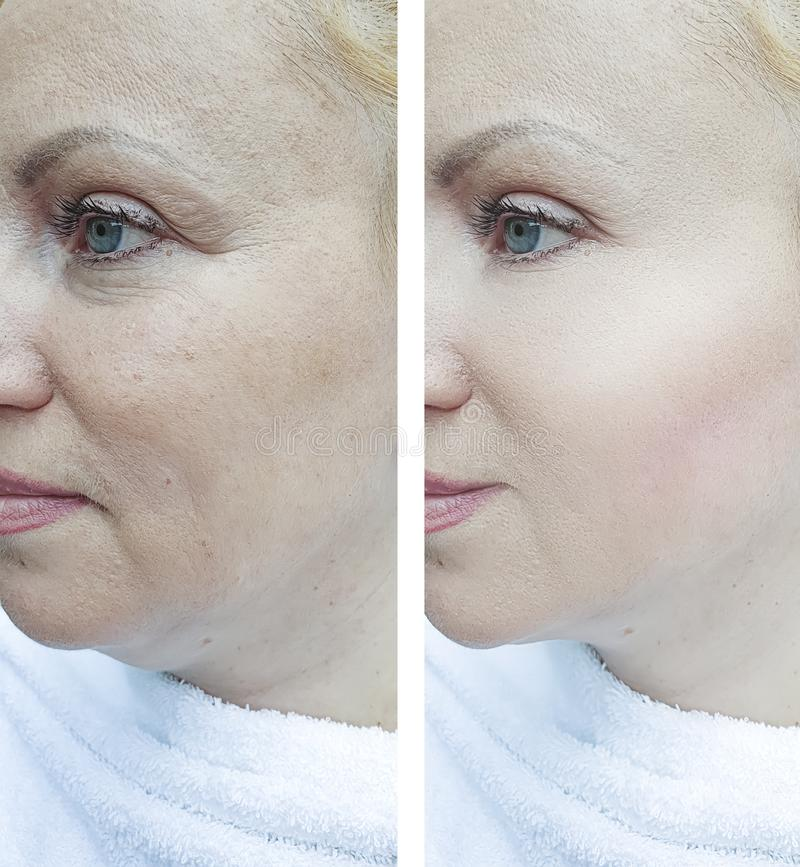 Woman face wrinkles before removal after mature treatment correction lifting correction. Woman face wrinkles before and after  correction  lifting treatment royalty free stock photography