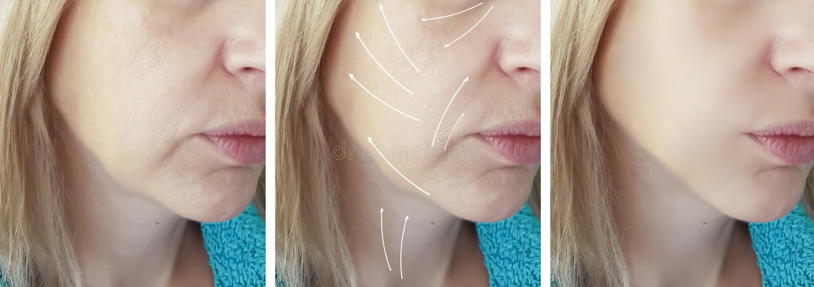 Woman face wrinkles removal cosmetology patient medicine before and after difference treatment procedures, arrow. Woman face wrinkles removal before and after stock images