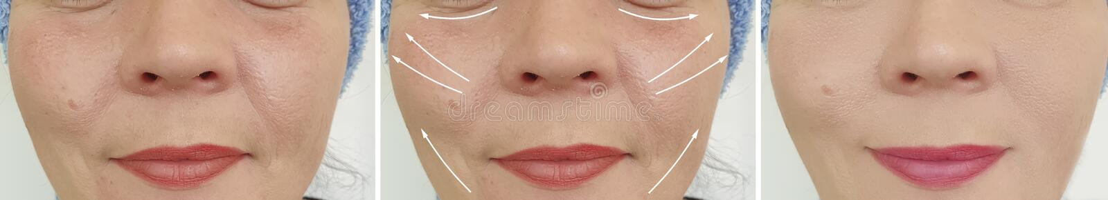 Woman face wrinkles result procedure lifting removal difference before and after correction. Woman face wrinkles before and after correction difference result royalty free stock photography