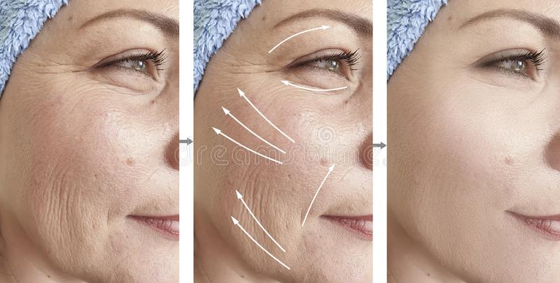 Woman face wrinkles result procedure rejuvenation lifting removal difference before and after correction. Woman face wrinkles before and after correction stock images