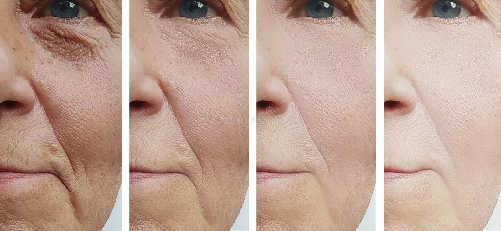 Woman face wrinkles correction difference beautician before and after cosmetology treatment rejuvenation stock images