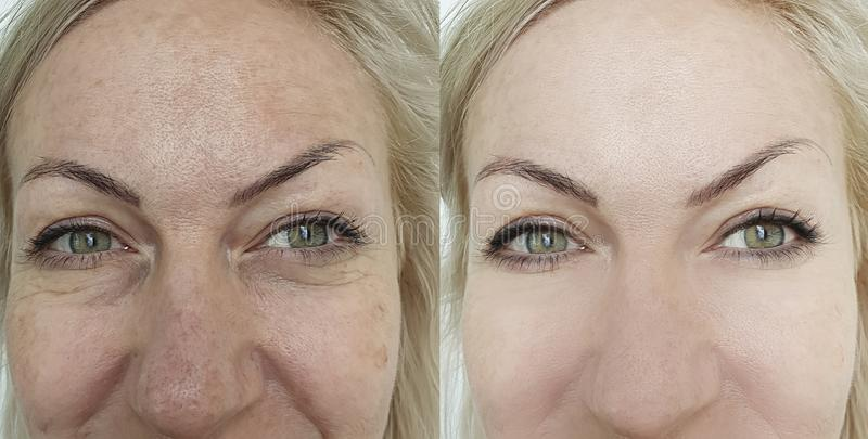 Woman face wrinkles before and after treatment results stock photos