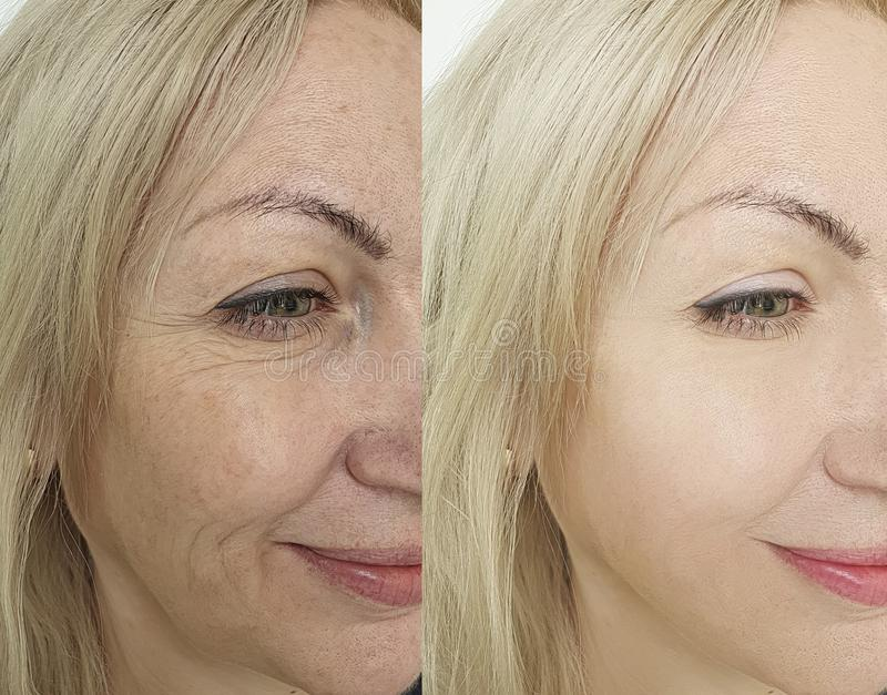 Woman face wrinkles before and after treatment royalty free stock image