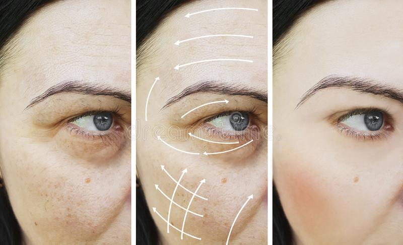 Woman facial adult wrinkles lift effect difference filler before and after procedures. Woman adult facial wrinkles correction before and after arrow removal stock photography