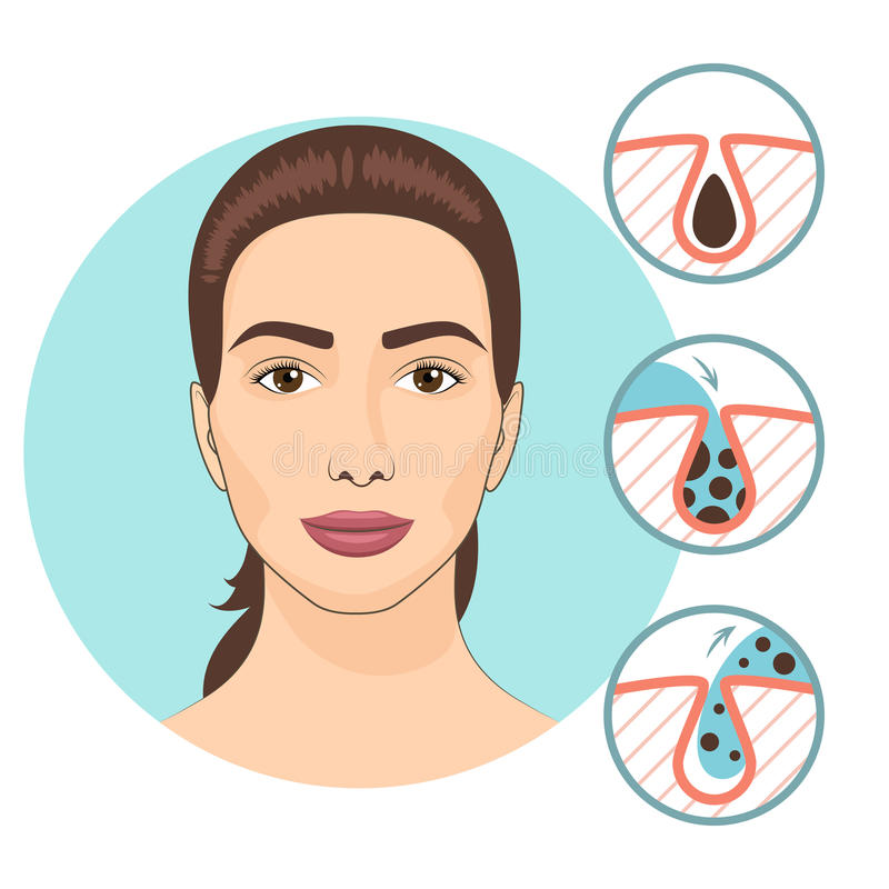 Woman facial treatments. Skin problems and face care vector illustration stock illustration