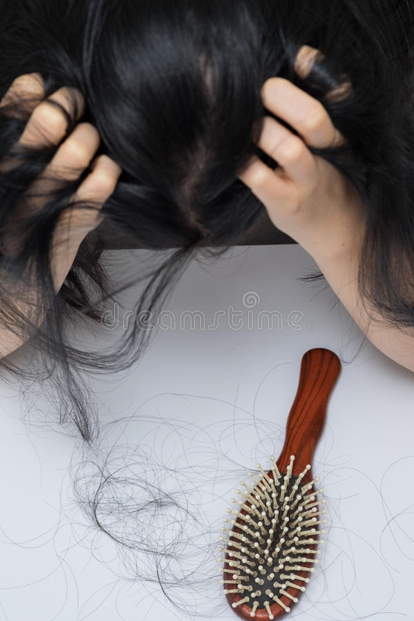 Woman hair loss problem stock images