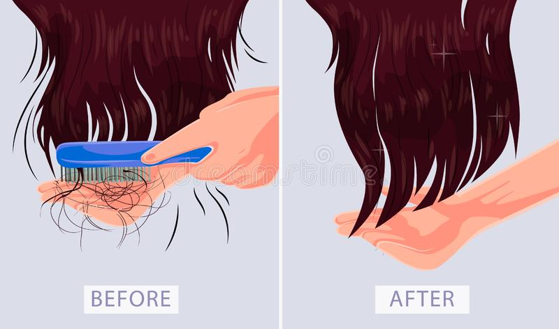 Woman with hair problem, fall, alopecia, damage, vector illustration depicting before after. Girl with hair problem, fall, alopecia damage royalty free illustration