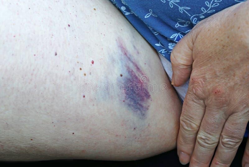 Women inner thigh