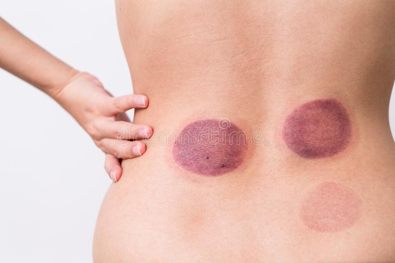 Woman having cupping therapy stock photos