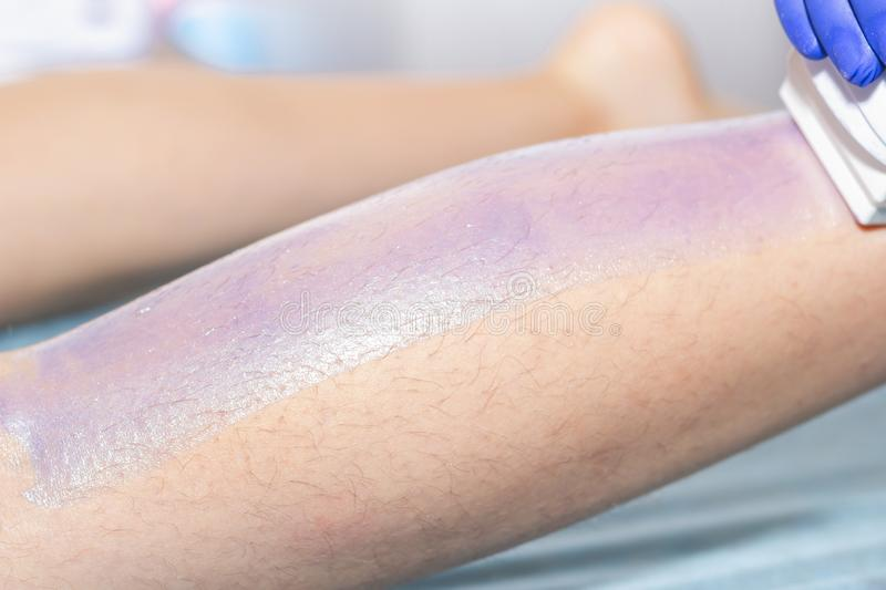 Woman having hair removal procedure on leg with wax depilatory in salon. Depilation concept.  royalty free stock images