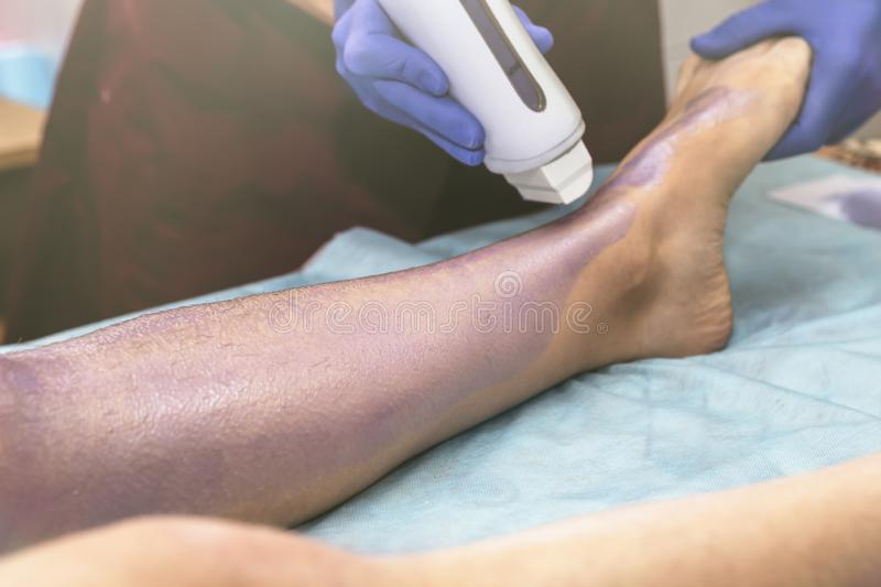 Woman having hair removal procedure on leg with wax depilatory in salon. Depilation concept.  stock photos