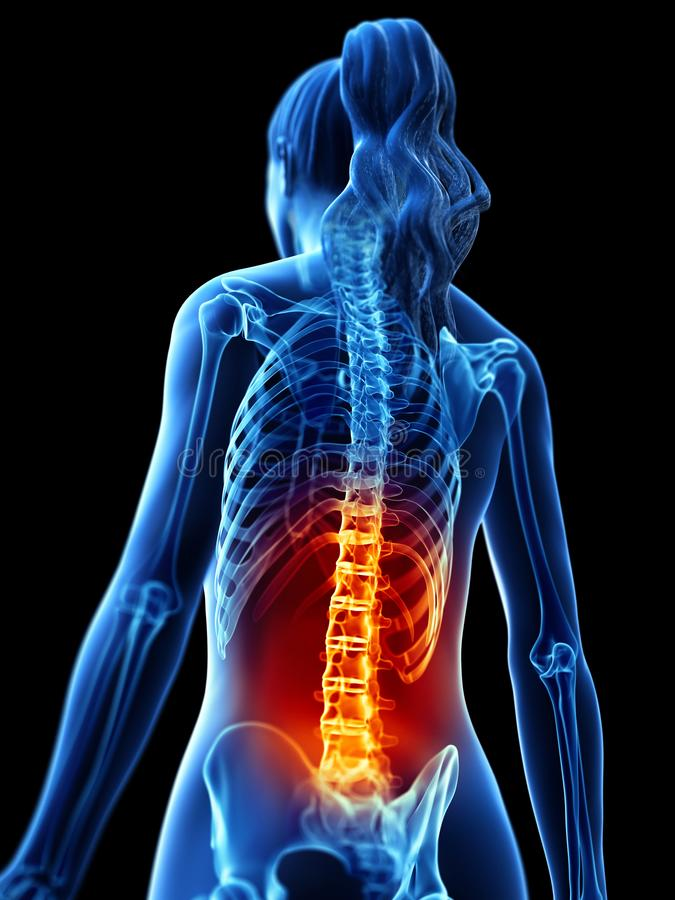 A woman having a painful back royalty free illustration
