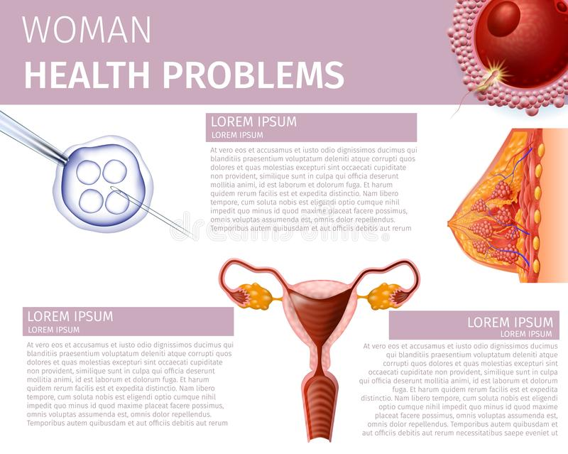 Woman Health Problem Anatomical Medical Aid Banner. Woman Health Problems. Detailed Cross Section of Female Breast, Uterus Front View and Fertilized Egg Cell vector illustration